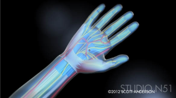 Carpal Tunnel Illustration
