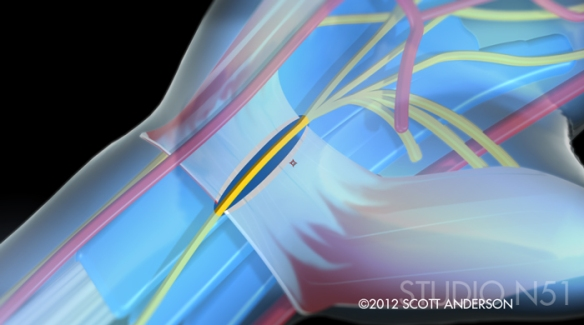 carpal tunnel animation close up image